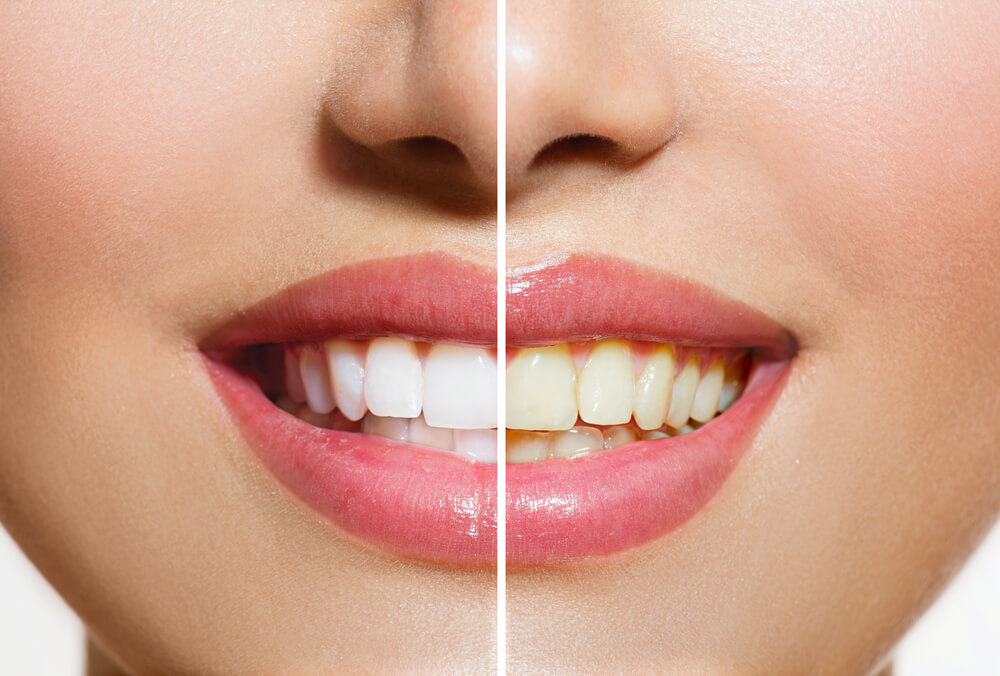 10 Health Benefits of Oil Pulling